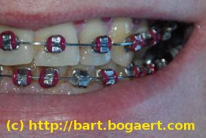 kids braces